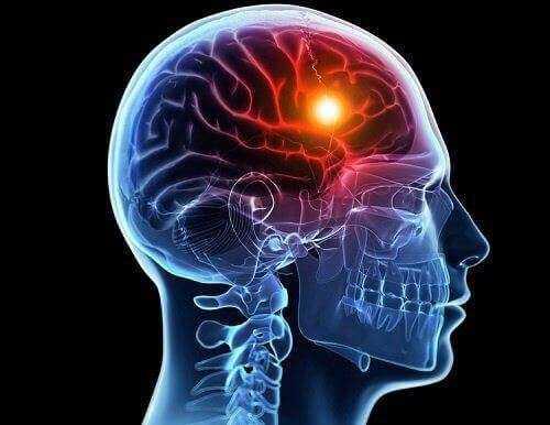 Vücudun Beyin Felci Öncesinde Verdiği 8 Uyarı 1