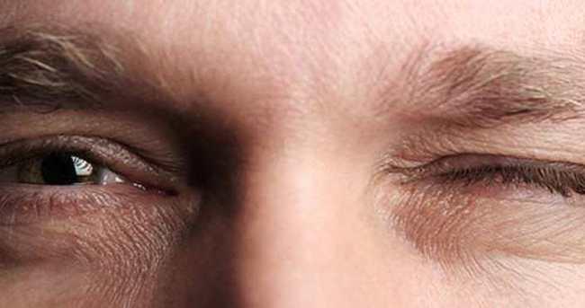 Göz Seğirmesi Neden Olur? Nasıl Geçer? 3