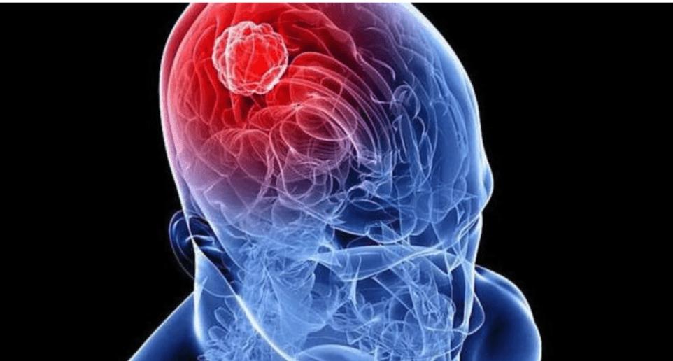 Beyin tümörünün bu 5 belirtisine dikkat 5