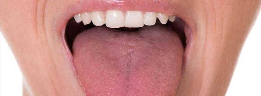 Dilinizin Üstündeki İzler Ne Anlama Geliyor? 3