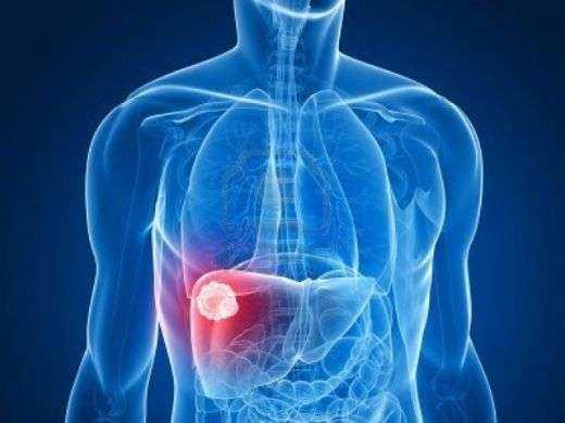 Karaciğerinizin Toksinlerle Dolu Olduğunun 6 Belirtisi 1