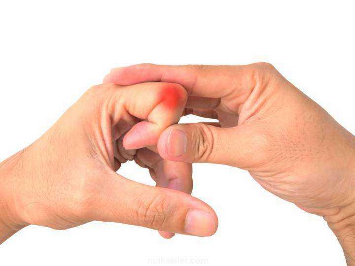 Dikkat! Ellerinizi Çıtlatırken Bir Kez Daha Düşünün ! 1