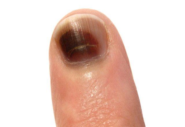 Sıkça Görülen Tırnak Hastalıkları 19