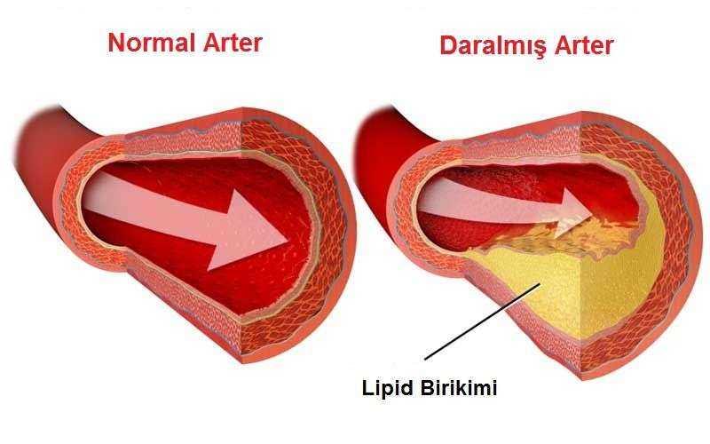 Damarlarda Biriken Kolesterolü Temizleyin 1