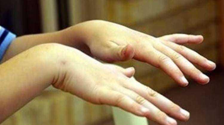 El Titremesi Neden Olur? Bir Hastalığın Habercisimidir? Çaresi Nedir? 5