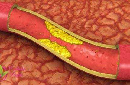 40 Günde Kolesterolü Damarlarınızdan Sileceğiniz Kür! 1