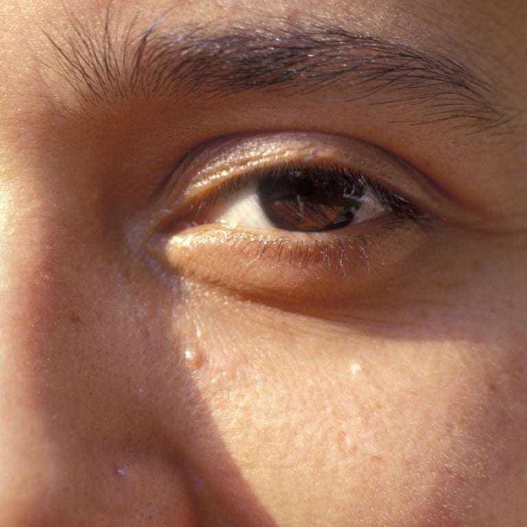 Yüzünüzdeki ufak beyaz noktalarla nasıl başa çıkabilirsiniz? 3