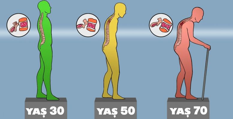 Yıllar Geçtikçe Güçsüzleşen Kemiklerinizin Eski Sağlığına Kavuşmasını Sağlayan İpuçları 19