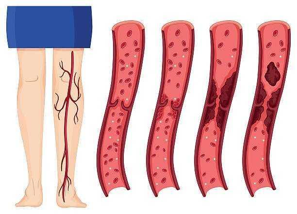 Kan Pıhtısını Engelleyen Doğal Kan Sulandırıcı 1