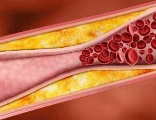 Kan Pıhtısını Engelleyen Doğal Kan Sulandırıcı 9