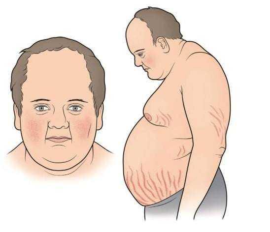 Fazla Kilonuzdan Kurtulmayı Engelleyen 7 Sağlık Sorunu 11