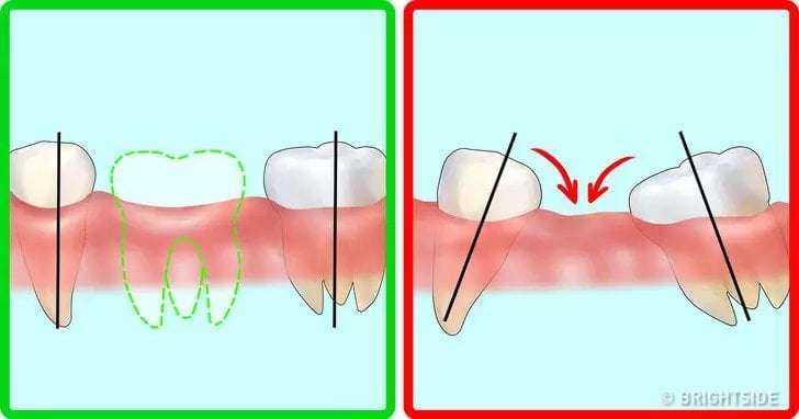 Diş Doktorlarına Sorulmuş En Önemli Soruların Cevapları 9