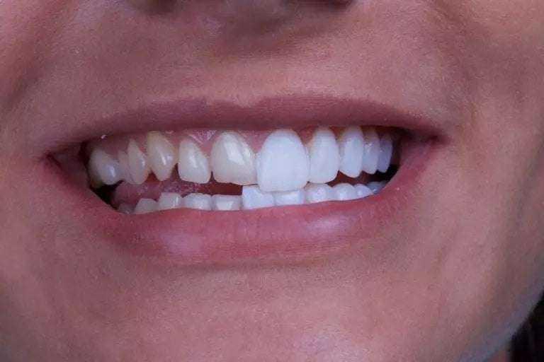 Diş Doktorlarına Sorulmuş En Önemli Soruların Cevapları 7