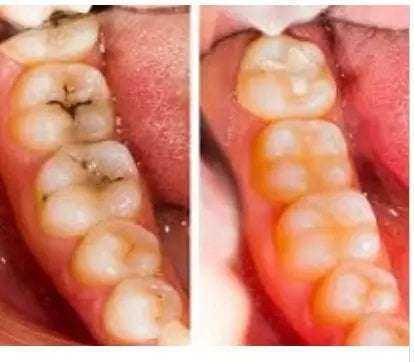 Diş Doktorlarına Sorulmuş En Önemli Soruların Cevapları 5