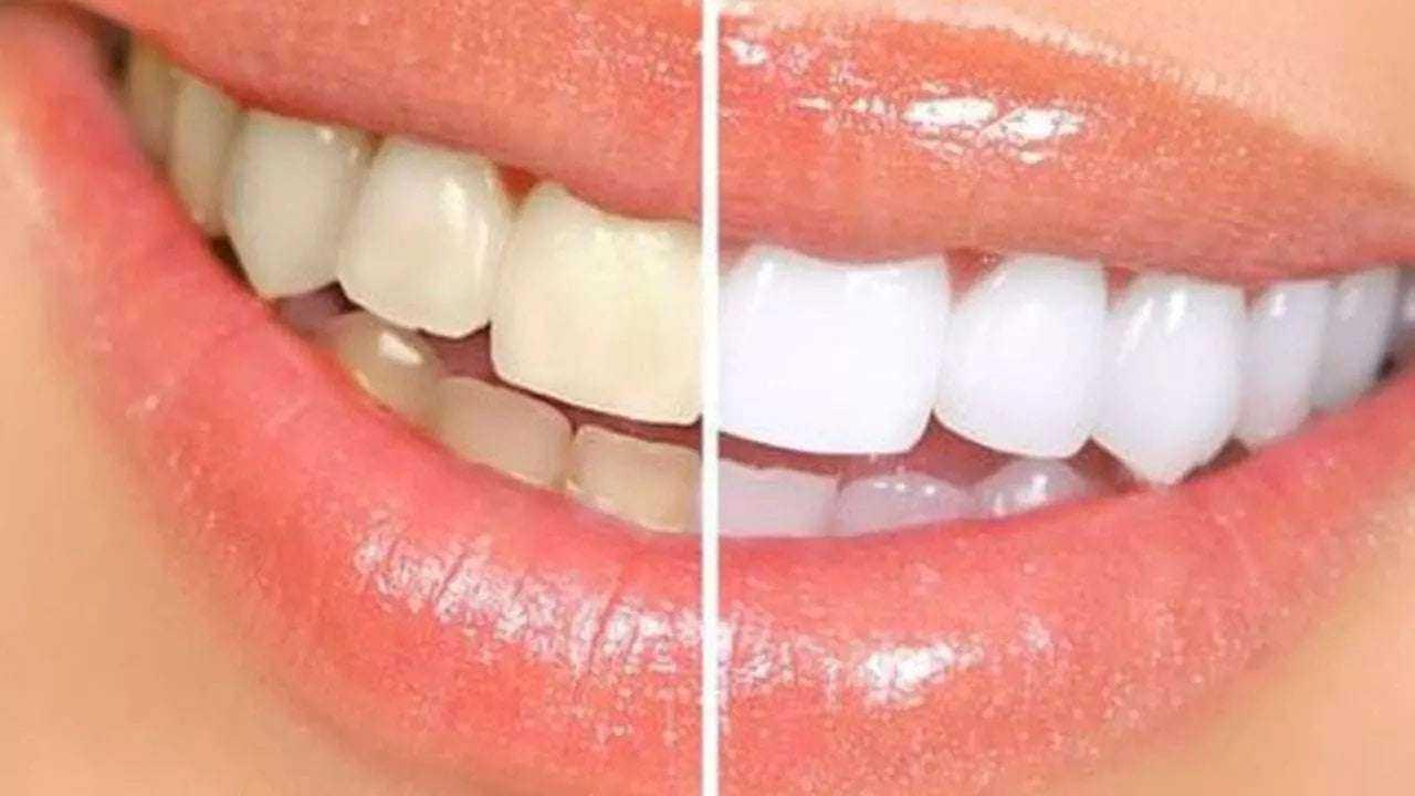 Diş Doktorlarına Sorulmuş En Önemli Soruların Cevapları 3
