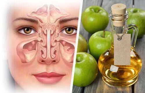 Elma Sirkeli Karışımla Migren, Sinüs Enfeksiyonunu Dakikalar içinde Yok edin 1