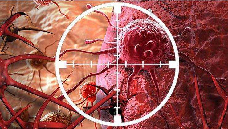 Kanser iyileştirilmesi en kolay hastalıktır 3