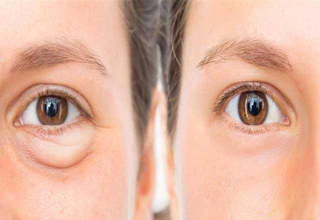 Vitamin eksikliğini yüzünüzde gösteren 5 işaret 9