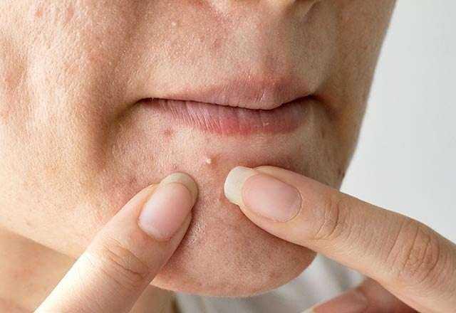 Vitamin eksikliğini yüzünüzde gösteren 5 işaret 3