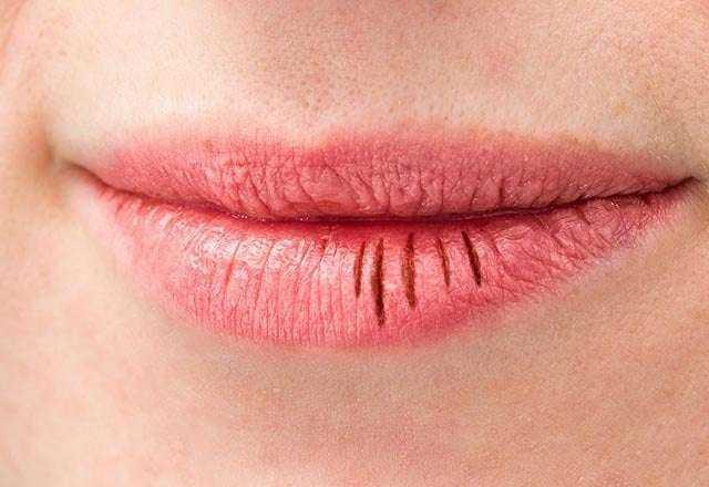 Vitamin eksikliğini yüzünüzde gösteren 5 işaret 7