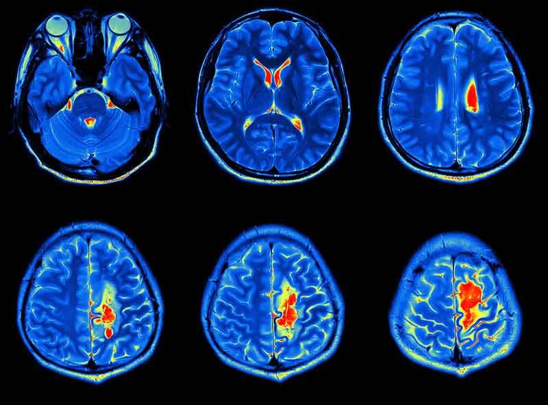 Beyin Tümörü Belirtileri Nelerdir? Nelere Dikkat Etmeliyiz? 3