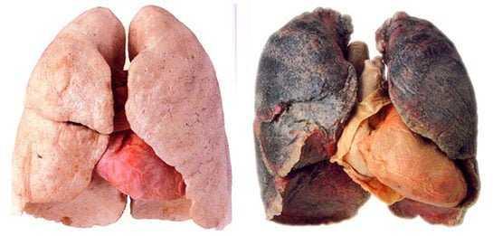 Akciğerde-ki Nikotin ve Katranı Temizleyen Harika Kür 1