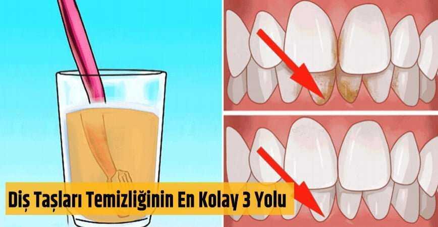 Photo of DİŞ TAŞLARI TEMİZLİĞİNİN EN KOLAY 3 YOLU