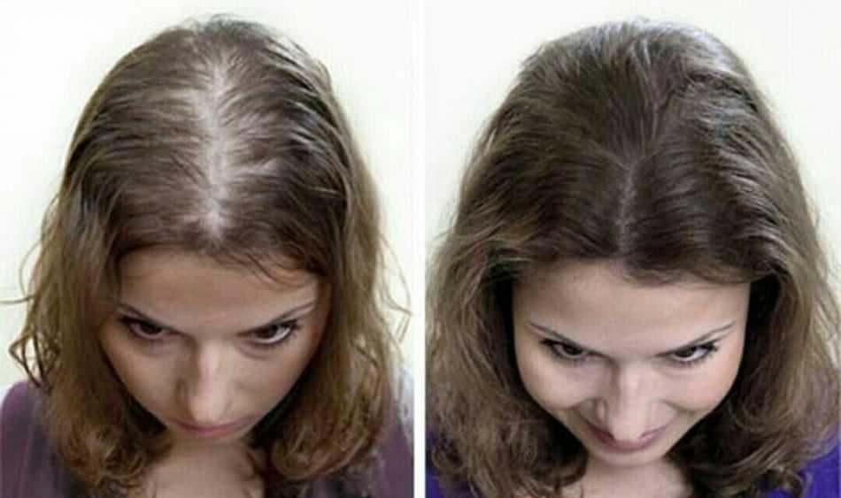 Saç Dökülmesini Önleyen Doğal Şampuan Tarifi 5