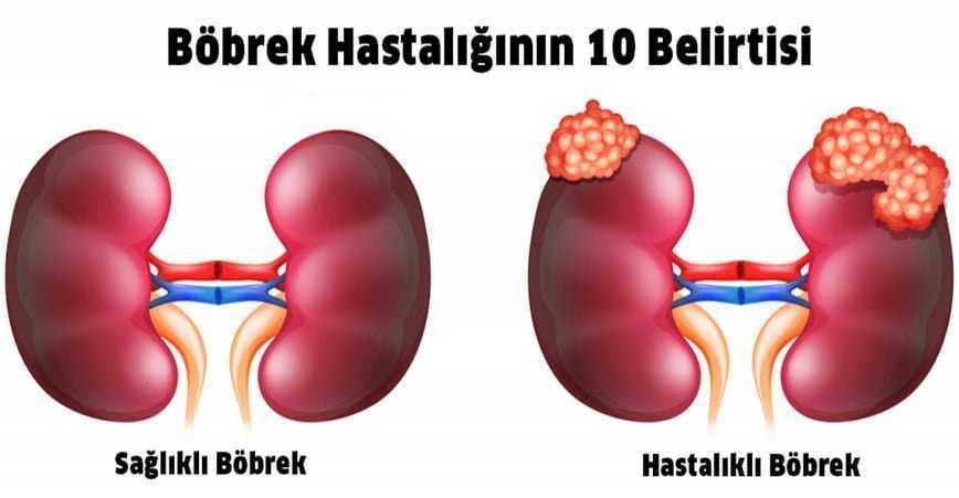 Photo of BÖBREK HASTALIĞININ 10 BELİRTİSİ