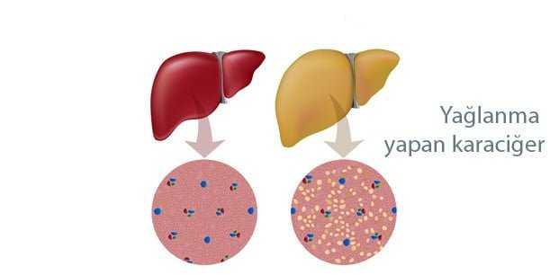 Karaciğer Yağlanması Neden olan faktörler ve Ciltteki Belirtileri 5