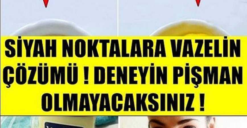 Photo of SİYAH NOKTALARA VAZELİN ÇÖZÜMÜ! DENEYİN PİŞMAN OLMAYACAKSINIZ!