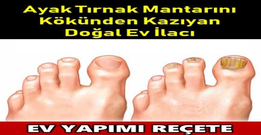 Photo of AYAK TIRNAK MANTARINI KÖKÜNDEN KAZIYAN DOĞAL EV İLACI